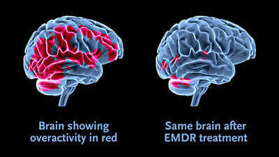 EMDR Tekniği İle Panik Atak Terapisi